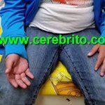disdiadococinesia, adiadococinesia, síndrome cerebeloso